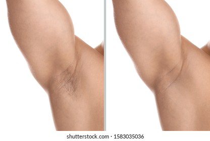 Collage of man showing armpit before and after epilation on white background, closeup