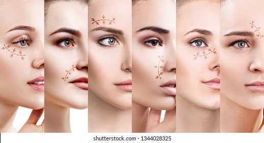 Collage of woman's faces with lifting arrows. Plastic surgery concept.