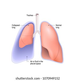 Collapsed lung. abnormal collection of air (pneumothorax) or fluid (pleural effusion) or pus (empyema) in the pleural space between the lung and the chest wall.