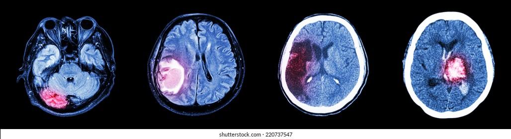 Vértigo o cáncer cerebral
