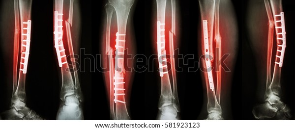 Collection image of leg fracture and surgical treatment by internal fixation with plate and screw . Break tibia and fibula bone .