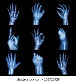 Collection x-ray of hands
