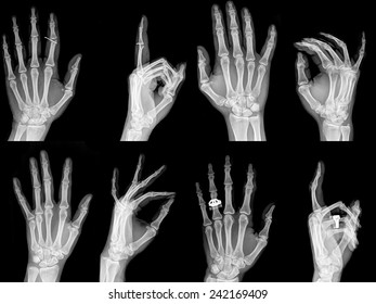 Collection x-ray of  hands , high quality image