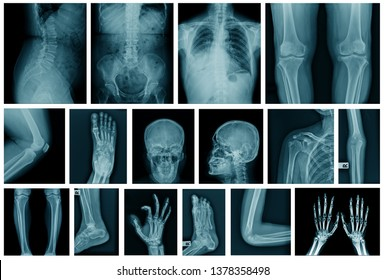 collection x-ray image in blue tone