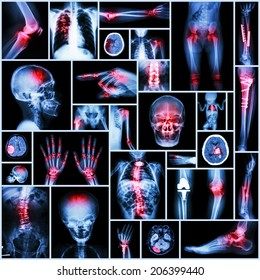 Collection of X-ray multiple part of human,Orthopedic operation and multiple disease (Stroke,Fracture,Gout,Rheumatoid arthritis,Scoliosis,Osteoarthritis knee,Tuberculosis, etc )