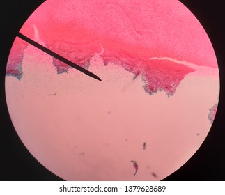 Colloid watery in background of thyroid glands.