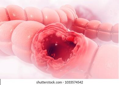 Colon cancer. Cancer attacking cell. Colon disease concept. 3d illustration