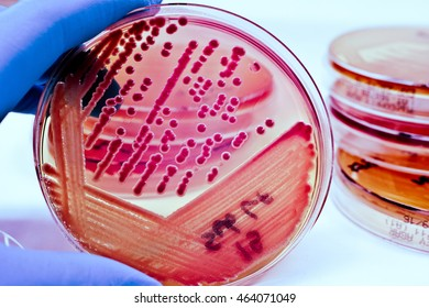 Colonies of Red Bacteria ferment lactose culture on MacConkey agar in microbiology department hospital for experiment glasses on white background