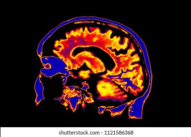 Colorized MRI Image Of Head Showing Brain