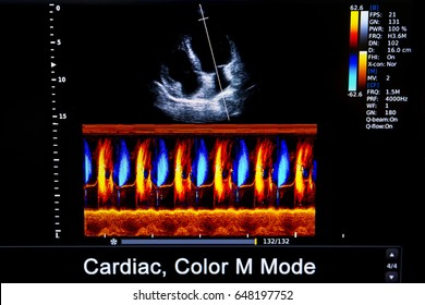 Colourful image of modern ultrasound monitor. Ultrasonography machine. High technology medical and healthcare equipment. Ultrasound imaging or sonography used in medicine. Human heart.Carodit.