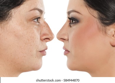 comparative portrait of a beautiful woman before and after nose surgery