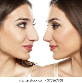 comparative portrait of a beautiful young woman, before and after rhinoplasty