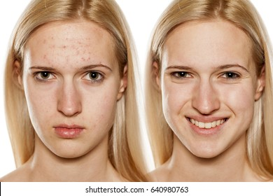 Comparative portrait of female face, before and after cosmetic treatment