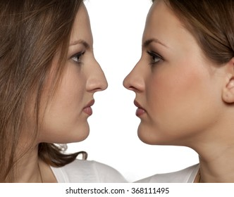 comparative portrait of a young woman before and after rhinoplasty