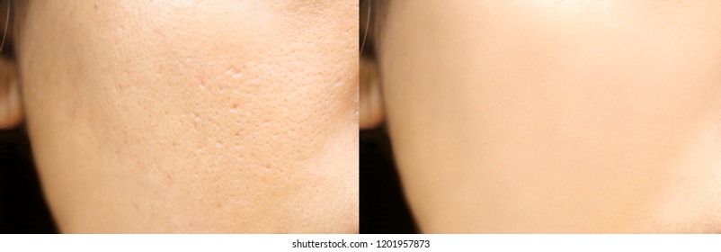 Compare before and after (retouch photo) of close up wide pores skin on oily face have pimple of asia woman