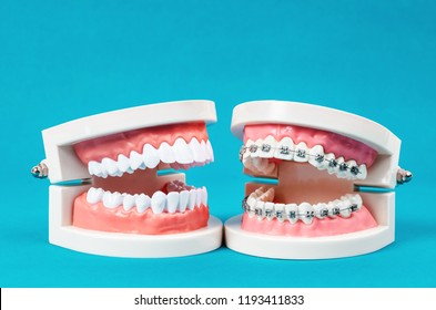 Compare tooth model and tooth model with metal wire dental braces on blue background.