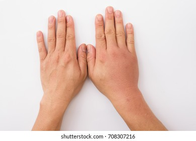 Compared two hands to see difference after bee sting.Swollen hand from insect sting on white background.Skin allergic care.