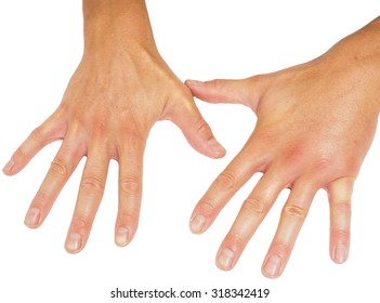 Comparing swollen male hands isolated towards white background
