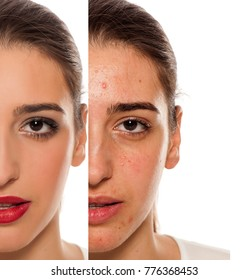 Comparision of before anf after mkeup on young woman with a problematic skin on her face