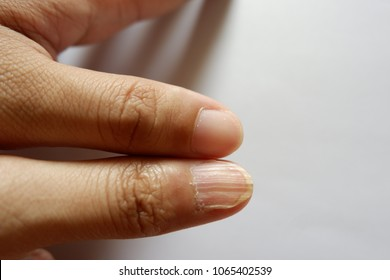 Comparision of Nail and abnormal nail or iron deficiency (anemia) of left and right thumb.