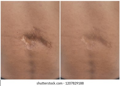 Comparision of skin after scar removal procedure,
