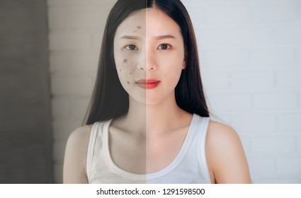 Comparison of Asian Woman Acne Face and After Clean Face when use Skincare Makeup Cleansing foam,Acne Gel.