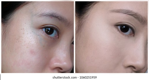 A comparison of an Asian woman before and after makeup, undergone dermatological treatment for dark spots, dark circles and acne.
