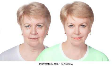 Comparison before and after rejuvenation.skin treatments.Selective focus. Isolated on white.