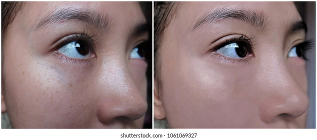 Comparison of before and after undergone skin treatment and makeup.