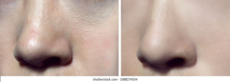 Comparison of before-after skin treatment and makeup. In the right side shows smoother skin and tightener pore.