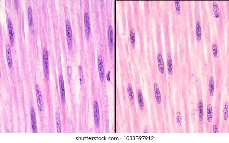 Comparison between the aspect of the nuclei of smooth muscle cells in relaxed (left) (elongated nuclei of regular contour) and contracted (right) (irregular contour nuclei) states. H&E stain.