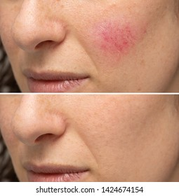 Comparison between before and after a treatment for rosacea