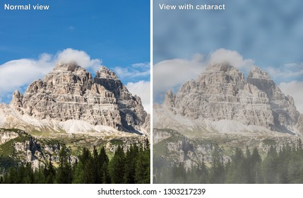 Comparison between a normal view and view of patient suffering from cataract