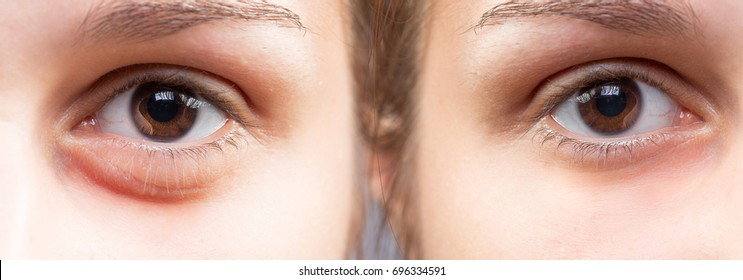 Comparison between two eyes before and after cosmetics treatment