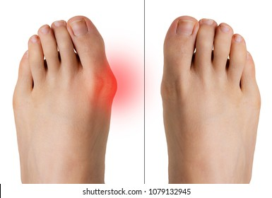 Comparison of bunion before and after correction surgery