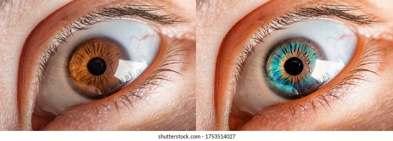 Comparison of colored iris of the eye and natural brown colour. Before and after keratopigmentation or Corneal tattooing, surgery carry out with the laser, apply a pigment to the cornea.