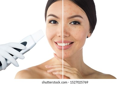 comparison face of beautiful woman with problem acne,blackhead, and after procedure ultrasound peeling skin are clean. Ultrasound Cavitation face peel skin before after
