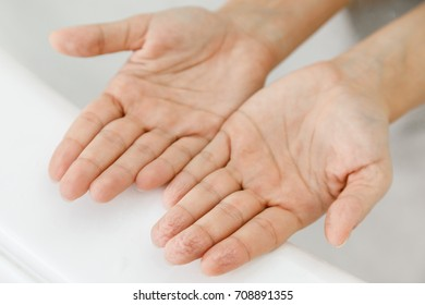 Comparison of female hands with wrinkles after bath