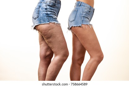 Comparison of female legs thighs with and without cellulite. Skin problem, body care, overweight and dieting concept.