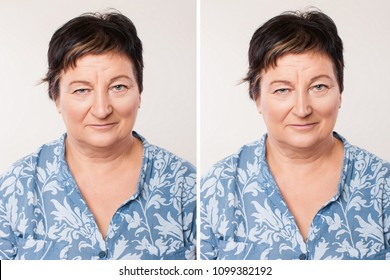 Comparison of Female nose after plastic surgery. portrait of caucasian woman comparison before and after rhinoplasty (nose operation) isolated on white background