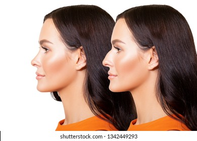Comparison of Female nose after plastic surgery. Portrait of Beautiful caucasian young woman in profile is isolated on white background - Image.