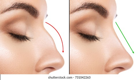 Comparison of Female nose after plastic surgery