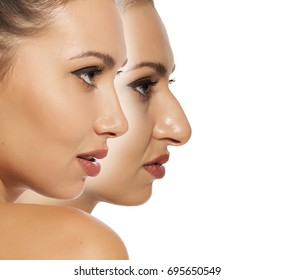 Comparison of female nose before and after cosmetic surgery