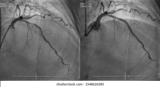 Comparison of left coronary artery angiogram between before and after percutaneous coronary intervention (PCI) to left anterior descending artery (LAD)