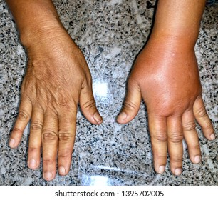 Comparison of normal right hand to Left Swollen and red hand caused by allergic reaction after insect bite in adult female patient in clinic of Myanmar. also called lymphedema.