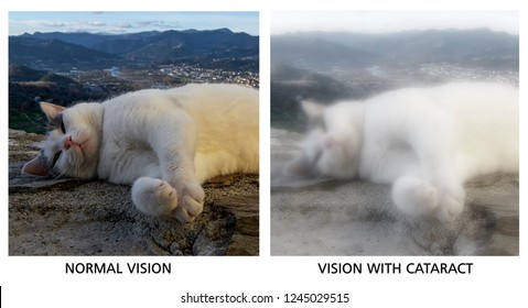 Comparison of normal vision and vision with cataracts. Medical problem. Visual disturbance.