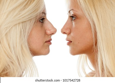 comparison of nose surgery, befora and after