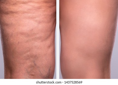 Comparison Of A Person's Legs Thighs With And Without Cellulite
