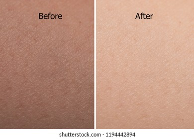 comparison portrait of asian woman skin color texture after using whitening cream