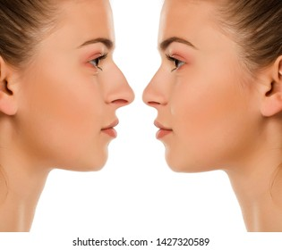 Comparison portrait of same woman before and after nose surgery on white background